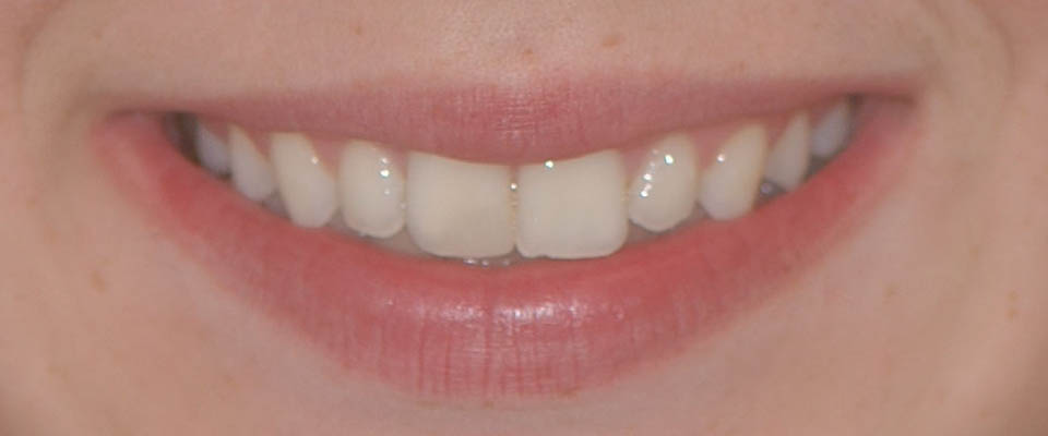 After orthodontic treatment (braces)