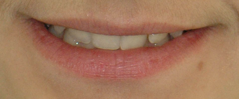 Avant traitement orthodontique (broches)