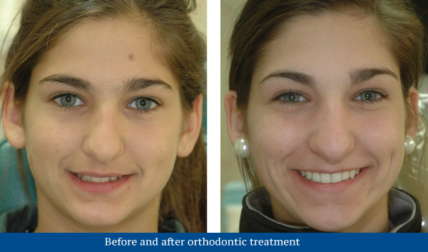 Before and after orthodontic treatment